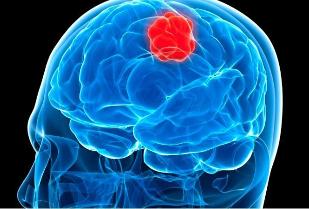 Linee guida per il trattamento di tumori cerebrali primitivi e metastatici degli adulti